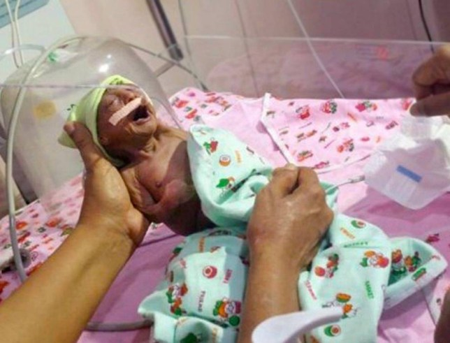 Newborn Baby Girl Abandoned By Parents Because Rare Condition Has Left Her Skin Wrinkly  credit: 247LatestNews