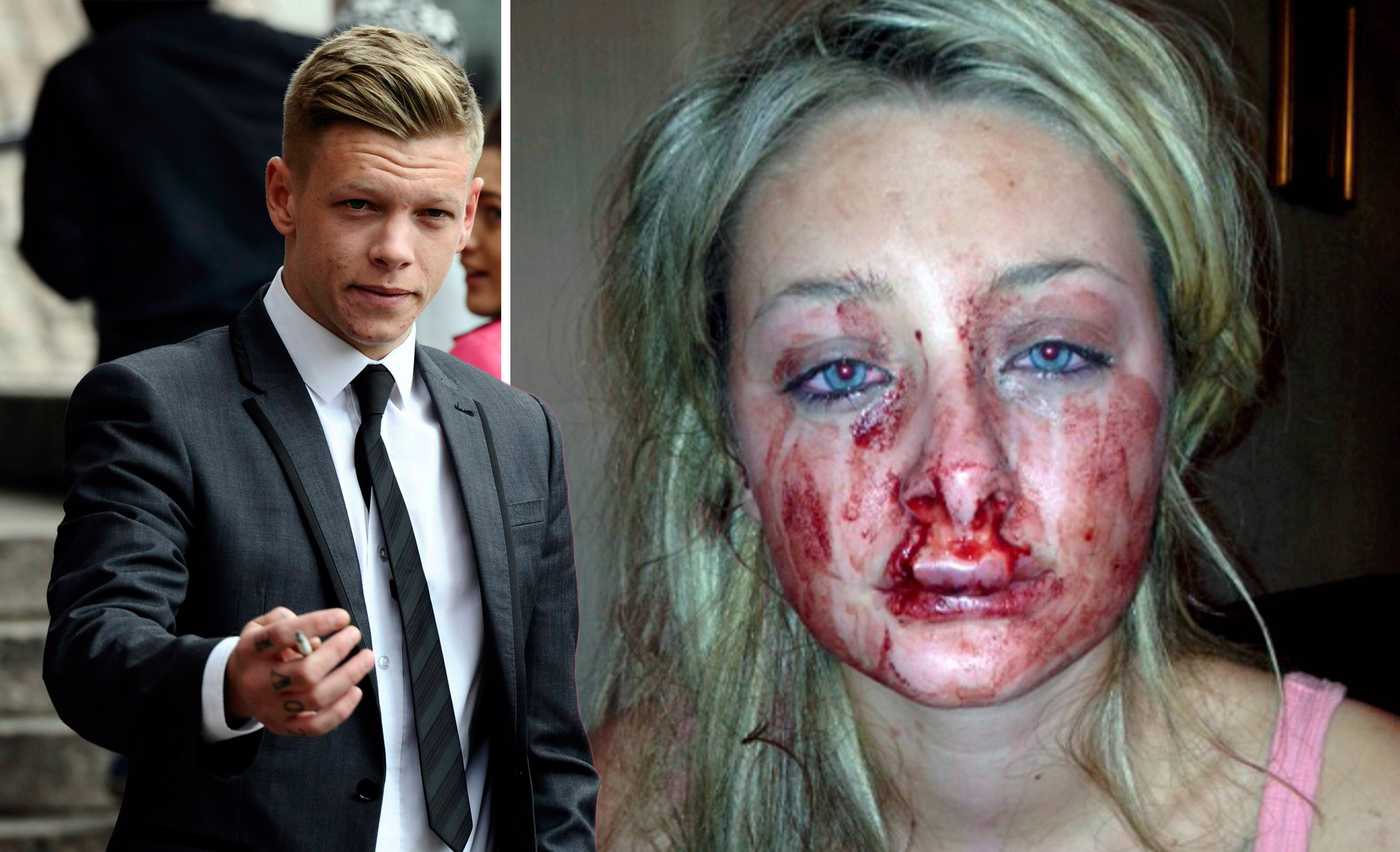 Domestic violence victim left disfigured after jealous ex bit her is entering beauty pageant