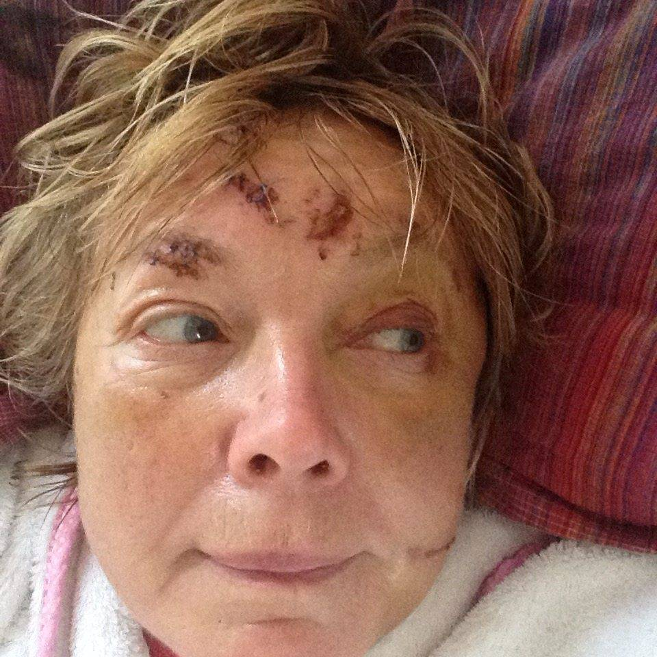 "Author Babette Cole's injuries after being attacked by a herd of cows. See SWNS story SWCOWS. A popular children's author has told how she was ""ready to die"" as she was savagely attacked by a herd of cows. Babette Cole, 64, curled into a foetal position as the rampaging animals 'played football' with her and left her bloody, bruised and semi-conscious. Babette, famous for her illustrated children's books including Princess Smartypants and Doctor Dog, was saved by a woman who bravely went to her aid. She said she owed her life to Rachel Hobbs who frightened away the cows and saved her in a field near her home in Lewdown, Devon."