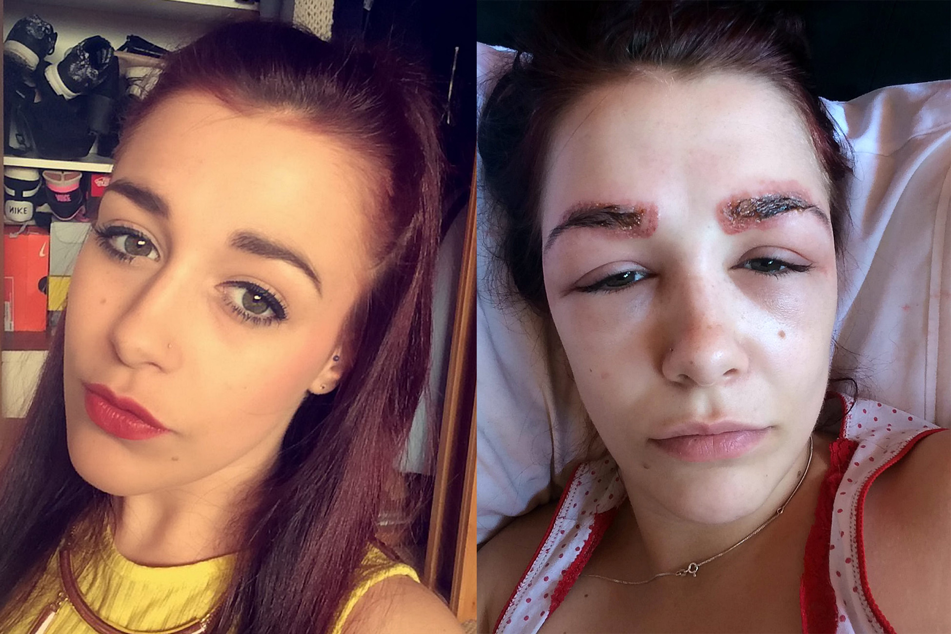 """Polly after her eyebrow treatment. A teenager fears she has been left permanently scarred after she had a severe allergy to an eyebrow tinting treatment which left her eyes swollen SHUT.See swns story SWBROWS. Polly Smith, 19, had the popular HD Eyebrow Treatment in the hopes of having thick eyebrows like her fashion idols.But she was horrified when just hours after the £35 dye, waxing and threading treatment, her eyebrows got itchy and red.The next day she woke up to find she could barely open her eyes - with one swollen totally shut - and her eyebrows had turned yellow and """"scabby"""" due to an infection.Medics diagnosed a severe allergic reaction to the dye and said she could be scarred for life, and now weeks later her eyebrows have started to fall out.The dance student from High Wycombe, Buckinghamshire, is warning young women to be wary of the treatment, which has left her self concious."""