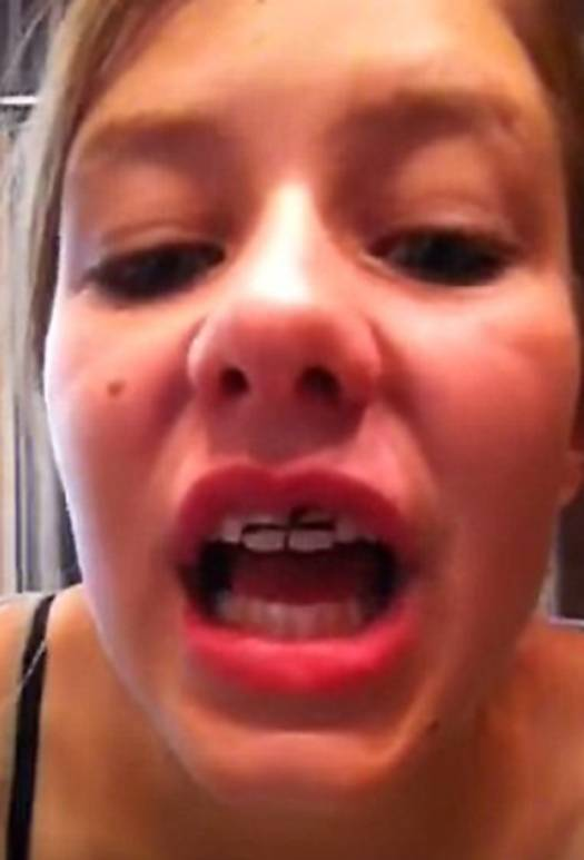 Worrying online trend sees teenagers making 'painful but cheap' DIY BRACES using elastic bands - which experts warn will ruin gums and make teeth fall out