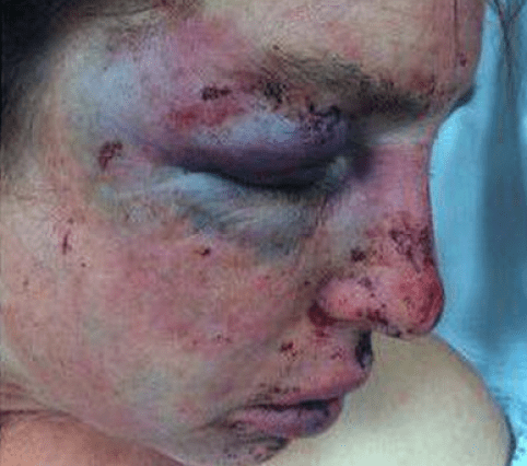 Domestic abuse victim Sonia Saxby hopes graphic images will