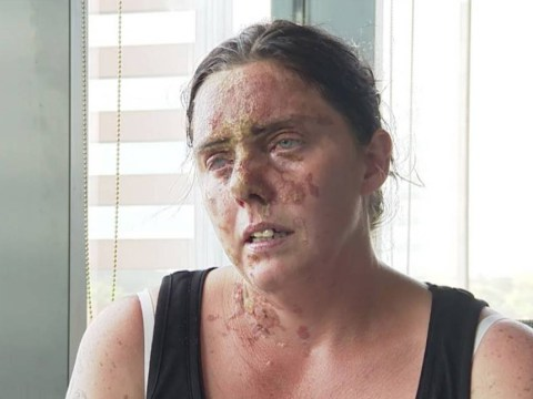 Mum of six may lose sight in one eye after horrific acid attack
