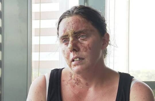 "***EMBARGOED UNTIL 6PM**** VIDEO AVAILABLE - CONTACT US Pictured: Acid attack victim Carla Whitlock A mother of six who suffered life changing injuries when acid was thrown in her face on a night out has bravely spoken of her ordeal for the first time - and revealed she is currently blind in her right eye. Doctors are desperately trying to save Carla Whitlock's eyesight in her right eye but the 37-year-old admitted in a heartbreaking interview: ""They are not hopeful."" The mum-of-six struggled to speak clearly because some of the acid from the attack got in her mouth, but bravely showed off her horrific scars. SEE OUR COPY FOR MORE. © Solent News & Photo Agency UK +44 (0) 2380 458800"