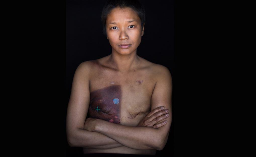 Robert Houser, Cancer, Photography, Facing Light