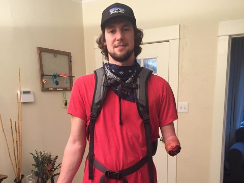 Amputee goes to Halloween party dressed as 127 hours climber
