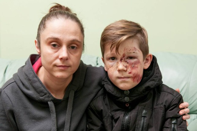 "Ashley Barrs, 10, who was injured in a hit and run incident on Wednesday evening at around 6pm - Pictured with mum Jane Keates.  Police are hunting a hit-and-run Audi driver who ploughed into a schoolboy at high speed leaving him with shocking facial injuries.  See NTI story NTIHIT.  Ten-year-old Ashley Barrs was playing football with his 12-year-old brother Jaden and two friends when he was hit at 6pm on Wednesday (4/11).  A white Audi A3 ploughed into him on Neachells Lane in Wednesfield, West Mids., sending him hurtling 10ft into the air.  Ashley was hit with such force the wing mirror was torn off the car but despite Ashley lying bleeding in the road the driver sped off.  The schoolboy, who was knocked unconscious, was rushed to hospital where he underwent a CT scan and an X-ray for injuries to his ankle, shoulder and stomach.  But doctors at New Cross Hospital in Wolverhampton, West Mids., told him it was a ""miracle"" he had no breaks or serious injuries.  His mum Jane Keates, 35, yesterday posted shocking pictures of Ashley's injured face, which is covered in cuts and bruises, on her Facebook page.  The family are appealing for information about the driver of the Audi who sped off leaving the youngster lying in the road."