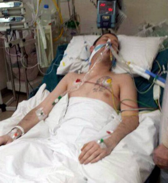 Dated: 12/11/2015 Craig Finn from Seaham, County Durham, who lost his leg and suffered terrible burns after he was set alight while asleep following a house party. James Gillibrand was today (THURS) jailed for five years and three months at Durham Crown Court. Pictured in hospital being treated for his injuries. See story North News