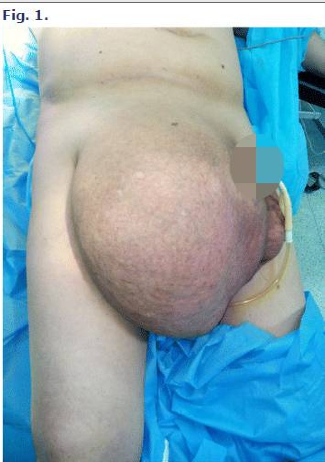 Giant inguinoscrotal hernia containing intestinal segments and urinary bladder successfully repaired by simple hernioplasty technique: a case report Credit: jmedicalcasereports