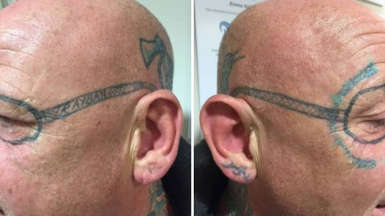 0894914e27f81 Drunken stag-do man wakes up with pair of 'Ray-Bans' tattooed on his ...