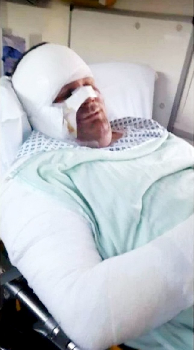 ***EMBARGOED UNTIL 15.00 GMT, NO ONLINE USE BEFORE THEN PLEASE*** Collect photographs of the burns to Kevin Woodward from an E-Cigarette. A FATHER-of-two cheated death after an e-cigarette battery exploded and set him on fire while he was asleep. See SWNS story SWECIG. Kevin Woodward was left with horrific burns to his face and arms when the Eleaf iStick, which he had left on charge overnight, somehow erupted. The 30-year-old says the pain he went through felt as if someone had held a ìblow torchî to his face. He frantically put out the flames with a pillow before being taken to hospital for treatment. Luckily Kevinís three-year-old son Taylor James had got out of the same bed just two hours earlier - a move his parents believe saved his life.Yesterday the scrapyard worker said: ìWe are both lucky to be here.î