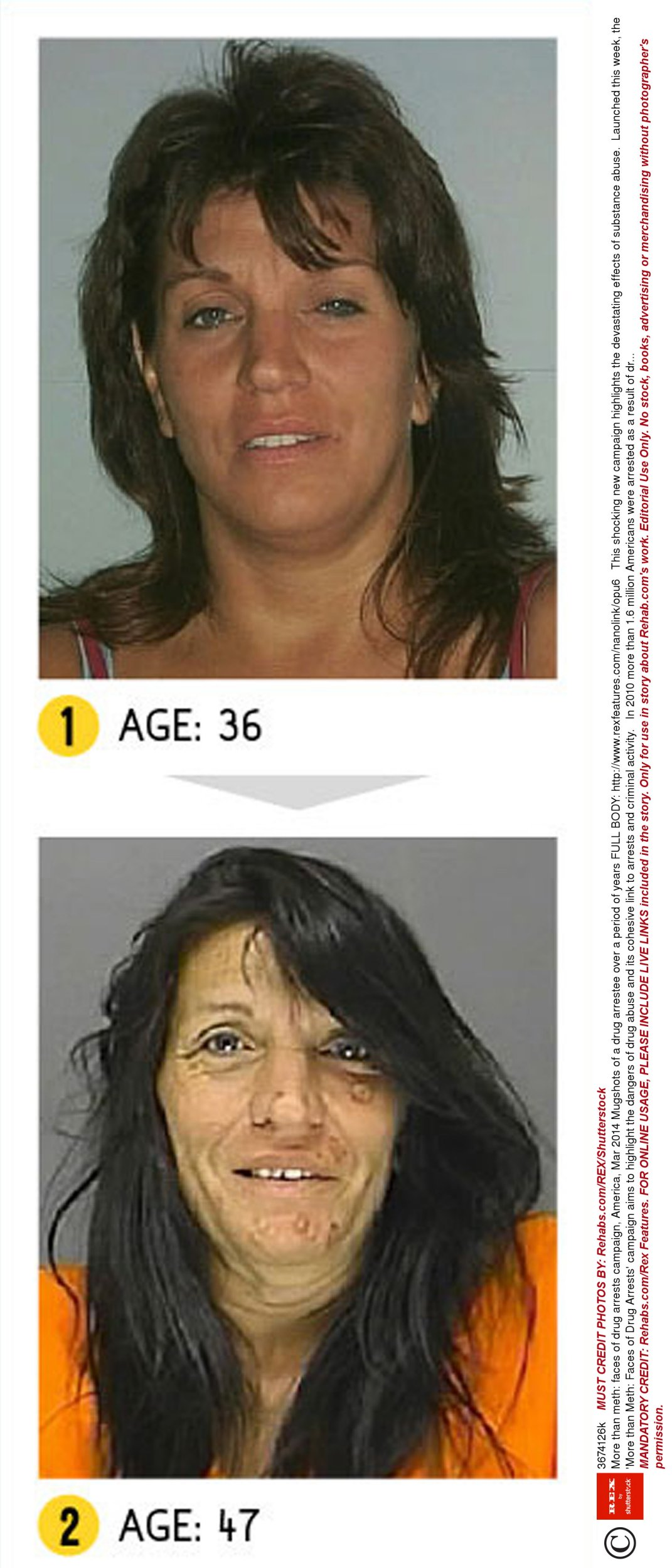 Before and after pics of crystal meth users are enough to put you