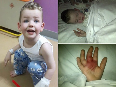 Toddler's hand paralysed after spider bite from Aldi bananas
