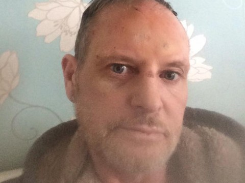 Troubled Paul Gascoigne smashes face during alcohol 'relapse'