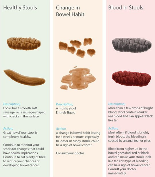 how to spot bowel cancer signs and see if your poo is