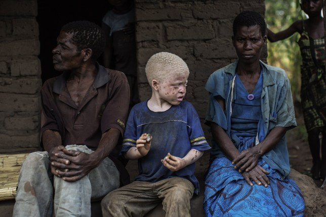 An albino child sits between his parents in the traditional authority area of Nkole, Machinga district, on April 17, 2015. Six albinos have been killed in the poor southern African nation since December, according to the Association of Persons with Albinism in Malawi. AFP PHOTO / GIANLUIGI GUERCIA (Photo credit should read GIANLUIGI GUERCIA/AFP/Getty Images)