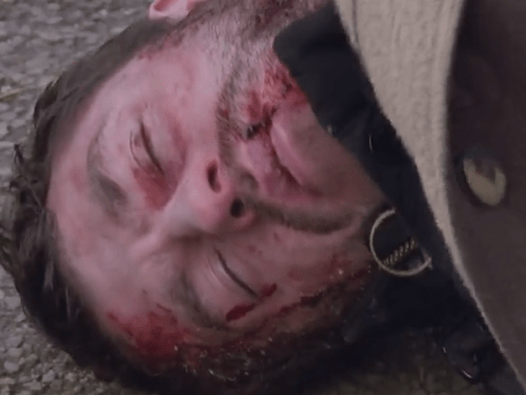 Emmerdale spoiler videos show Andy Sugden lying unconscious after being brutally attacked