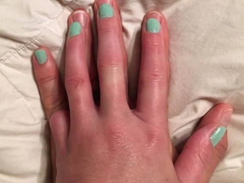 Husband offers his pinky to paint to soothe wife's upset over loss of her own