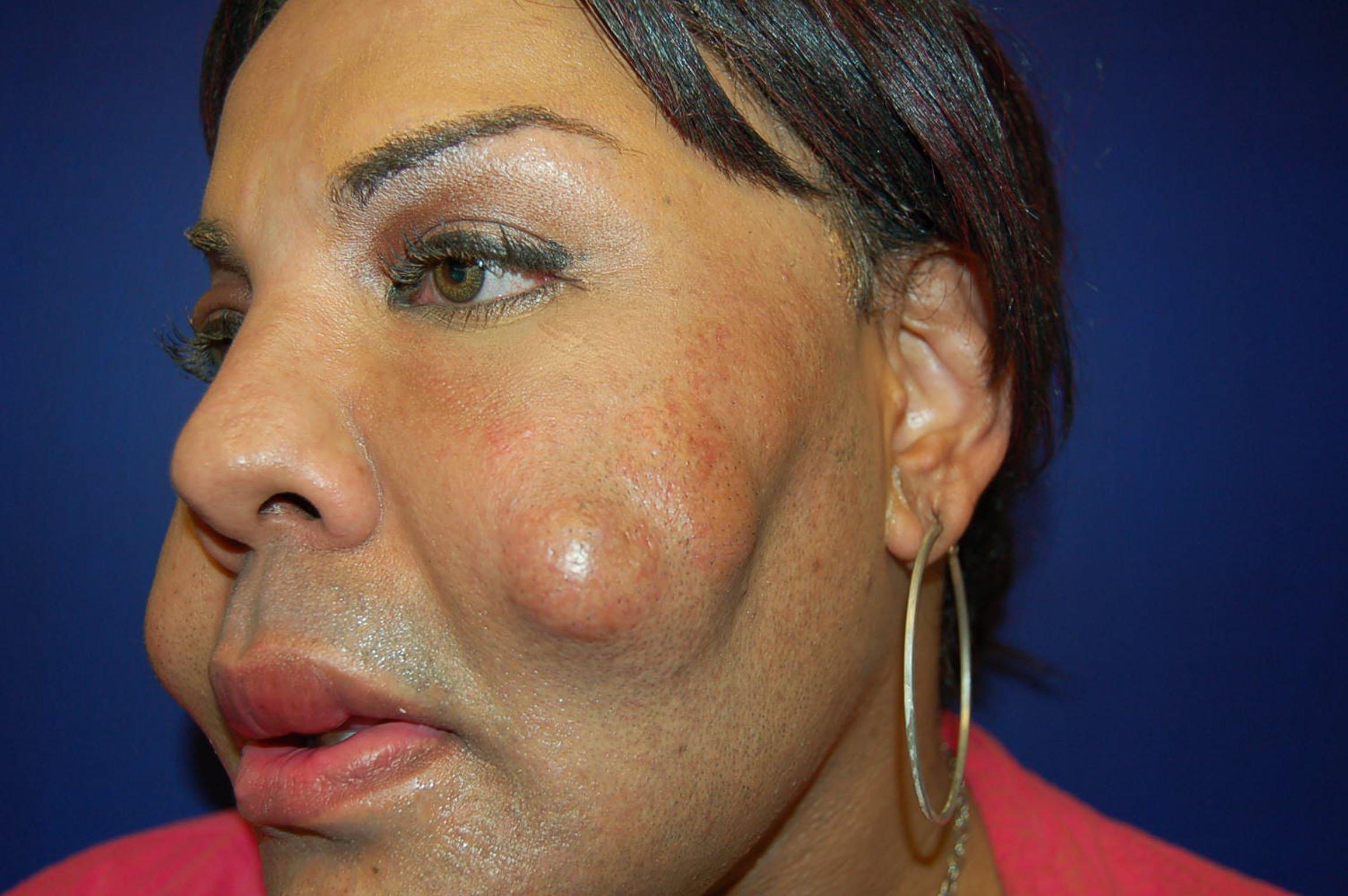 Tranny with 100 plastic surgeries