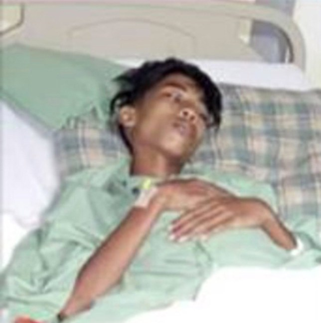 Teenager complaining of stomach pains has 'parasitic twin' removed' Credit: CEN