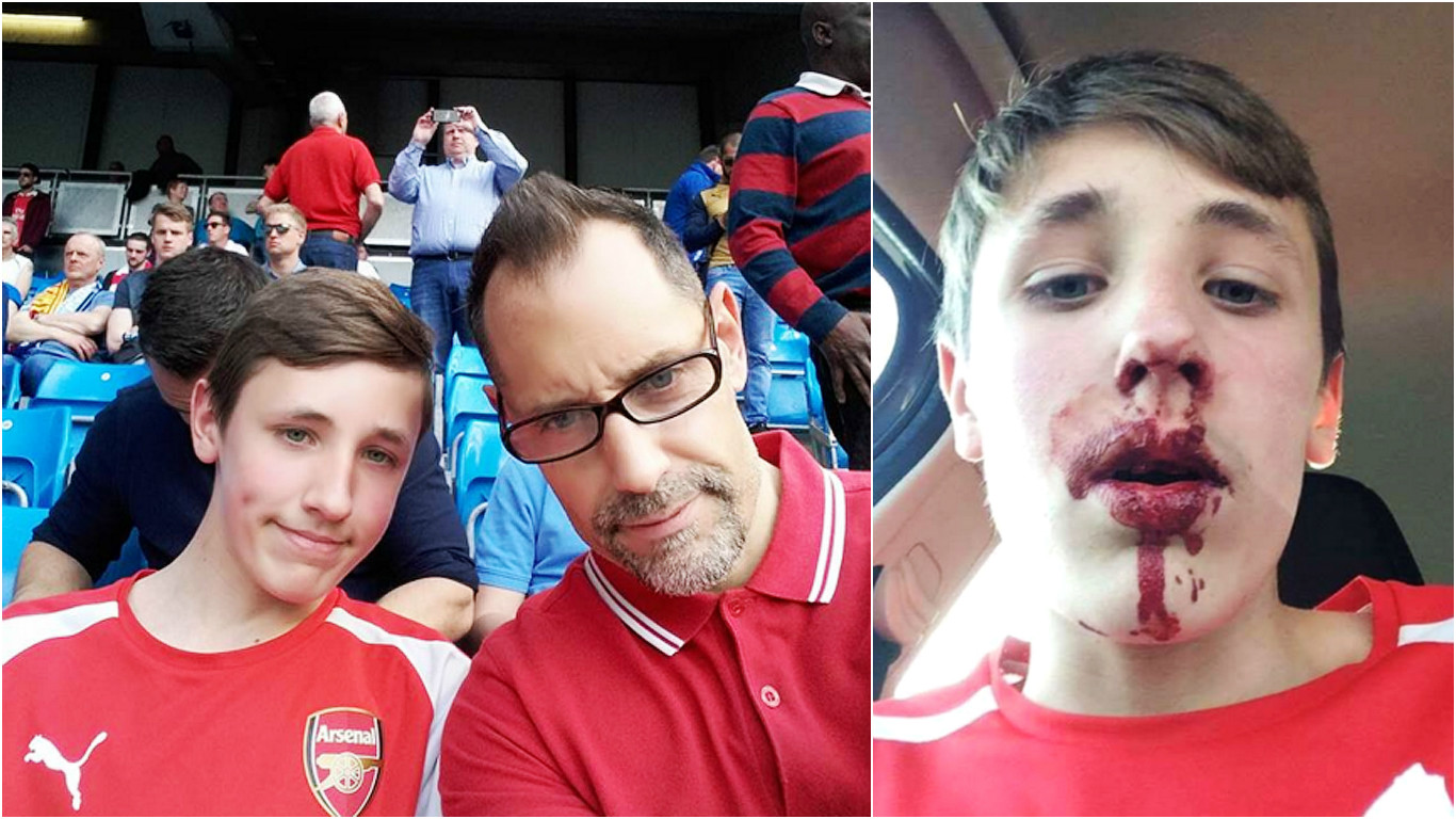 Arsenal fan, 12, punched in the face by Man City fan