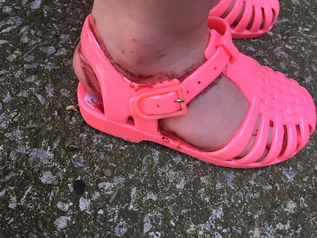 PIC BY MERCURY PRESS (PICTURED: ESME CONNOR, 2 WITH HER NEW SHOES THAT CUT HER ANKLES) A mum claims her two-year-old daughter was left in tears after a new pair of ëjellyí sandals given to her as a birthday present left her covered in blood when she wore them for just half an hour. EsmÈ Connor suffered 'horrific' cuts to her right ankle after she wore the pink children's size five shoes around her house and garden on Monday morning. Her mum Lisa Connor shared the shocking images of EsmÈ's injuries on social media to warn other parents about a potential problem with the footwear. SEE MERCURY COPY