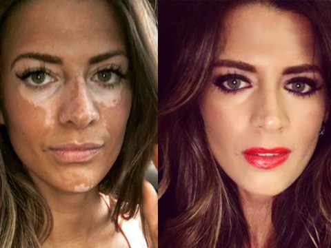 Woman with vitiligo challenges beauty standards with beautiful Instagram post