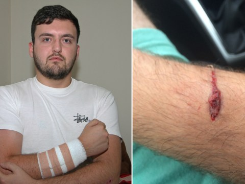 Man ends up in A&E after vicious attack by 'demon' cat
