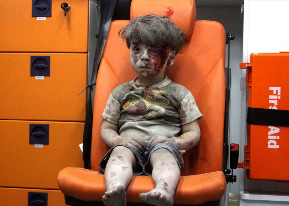 ALEPPO, SYRIA - AUGUST 17 : 5-year-old wounded Syrian kid Omran Daqneesh sits alone in the back of the ambulance after he got injured during Russian or Assad regime forces air strike targeting the Qaterji neighbourhood of Aleppo on August 17, 2016. (Photo by Mahmud Rslan/Anadolu Agency/Getty Images)***BESTPIX***