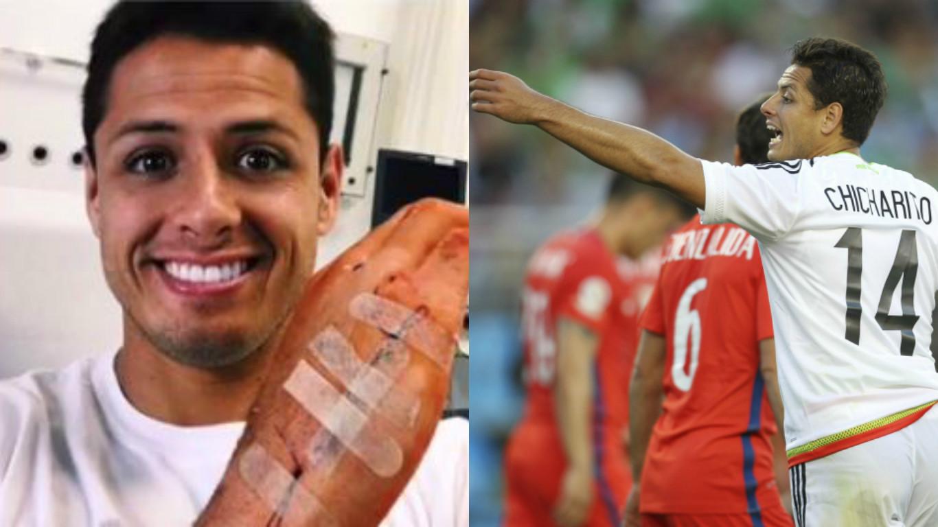 Former Manchester United striker Javier Hernandez reveals horrendous injury after 'domestic incident'