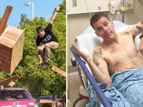 WATCH: Jackass' Steve-O breaks both legs as epic skateboard stunt goes very wrong