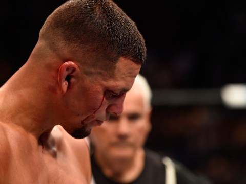 Nate Diaz's coach blames UFC 202 loss to Conor McGregor on injuries