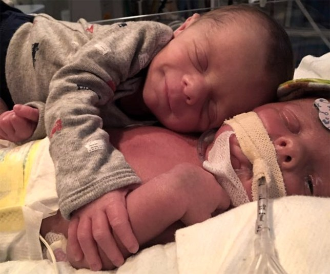 Heartbreaking picture of newborn baby saying goodbye to his sick twin Pictures taken from Facebook https://www.facebook.com/Mason.Hawk16/photos_stream credit:Mason & Hawk/Facebook