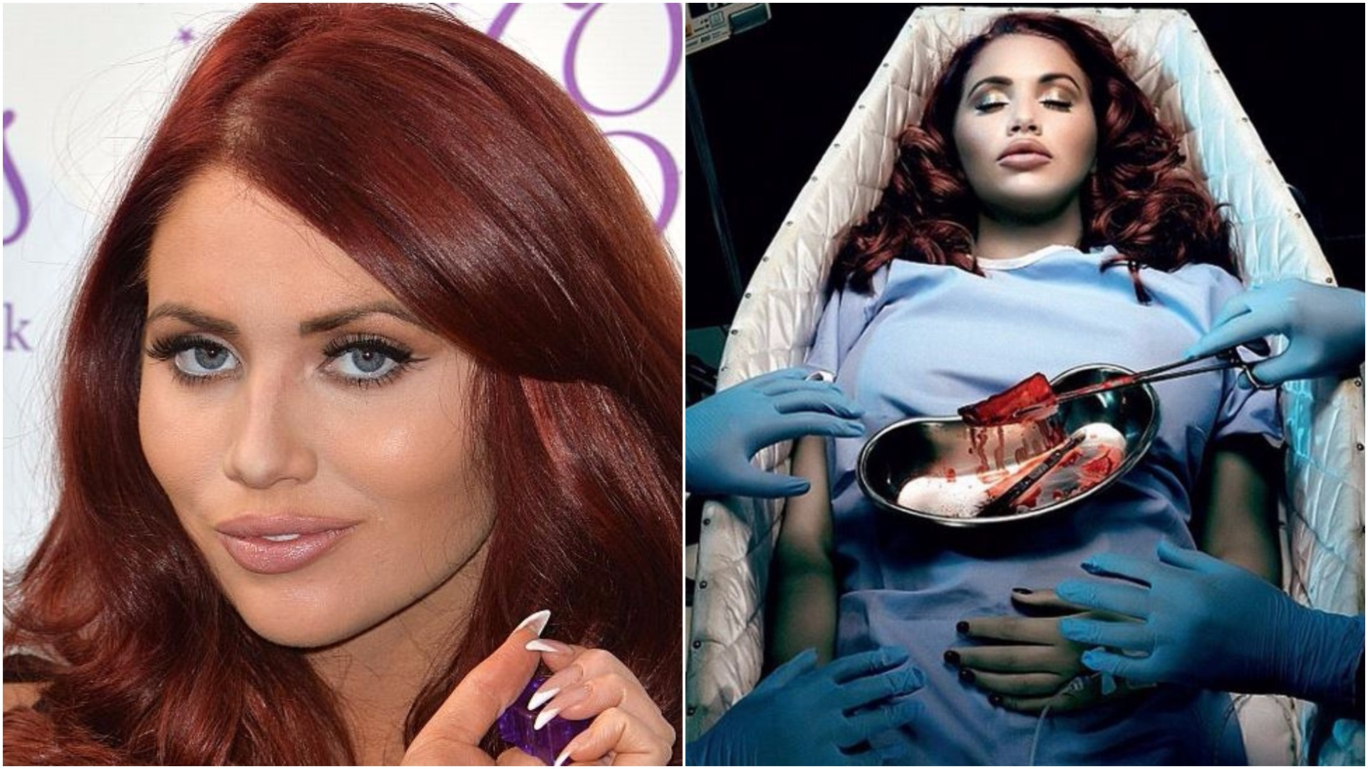 Amy Childs defends her 'hypocritical' appearance in a shocking anti-plastic surgery advert
