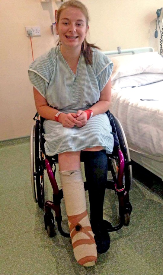 PIC FROM CATERS NEWS - (PICTURED: Hannah Moore sits in a wheelchair while in hospital.) - A teenager who suffered three years of hell thanks to an ingrowing toenail has paid for her own leg to be amputated. Hannah Moore, 19, from Stalbridge, Dorset, had an ingrowing toenail surgically removed in 2012 after months of discomfort. But days later she was left in unbearable pain, the slightest touch to Hannahs right leg left her in tears despite no sign of infection. Tragically doctors diagnosed her with a rare agonising condition - Complex Regional Pain Syndrome (CRPS) - which can be triggered by minor surgery, leaving her in agony 24-hours-a-day. Ulcers are a symptom of the condition and last year Hannahs foot turned black and scaly and a huge flesh eating hole appeared in the middle. SEE CATERS COPY.