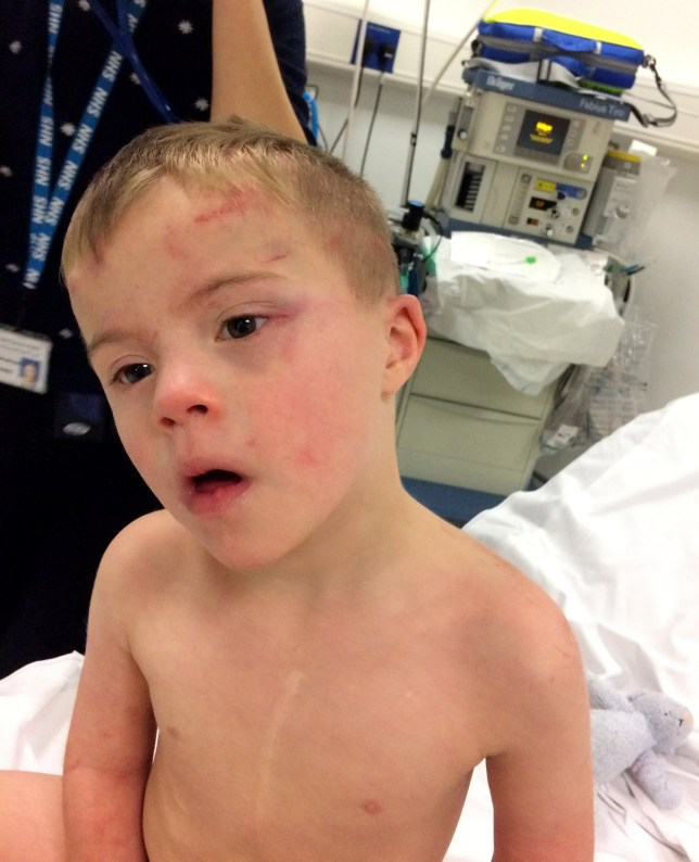 Undated family handout photo of 5-year-old Riley Gedge-Duffy, and the injuries he sustained after becoming trapped inside a tumble dryer. Riley was saved by the family dog Teddy, a 2-year-old cockapoo. PRESS ASSOCIATION Photo. Issue date: Monday November 14, 2016. A father has told how the family's pet dog saved their son after he became trapped in a tumble dryer. Riley Gedge-Duffy, five, suffered burns to his arms, back and head when the machine automatically started with the boy, who has Down's syndrome, stuck inside. Aaron Duffy said his wife, who was vacuuming at the time, only knew something was wrong when their dog, Teddy - a cockapoo, began to bark. See PA story ULSTER Dog. Photo credit should read: Aaron Duffy/PA Wire NOTE TO EDITORS: This handout photo may only be used in for editorial reporting purposes for the contemporaneous illustration of events, things or the people in the image or facts mentioned in the caption. Reuse of the picture may require further permission from the copyright holder.