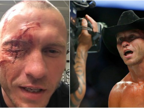 Video: Welterweight Donald Cerrone shows off gory eye injury ahead of Matt Brown fight at UFC Toronto in December