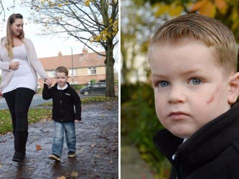 Boy, 3, left with tyre mark on his face after being hit by cyclist