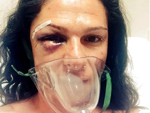 Politician beaten so badly by four men following car accident she needed surgery