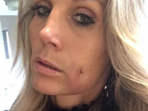 Mum has holes cut in her cheek because she's jealous of her son's dimples