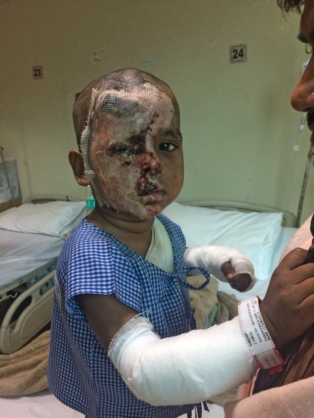 NEW DELHI, INDIA - DECEMBER, 31, 2016 : Two- year-old boy Aditya Raj, who was abducted and attacked with acid by his mother's stalker is being treated in Sir Ganga Ram Hospital in New Delhi, India. nnA horrific incident has left India in shock after a stalker abducted a woman¿s two-year-old son and poured acid over him for his mother¿s rejection to marry him. The incident took place on December, 13, 2016 at 6:20 PM, when Aditya Raj was playing outside his house, while his father Jamna Prasad, 33, a labourer was at work and mother Soni, 25, was in the house.nnPhotography by : Cover Asia Press / Faisal Magray