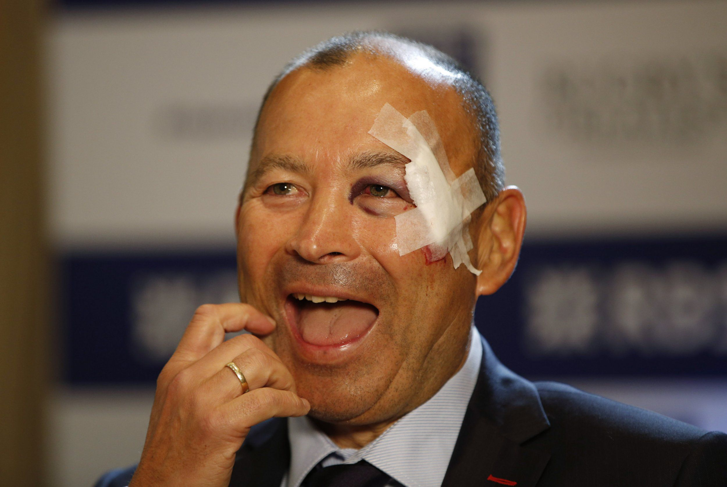Eddie Jones sports nasty facial injury at England press conference ahead of Six Nations