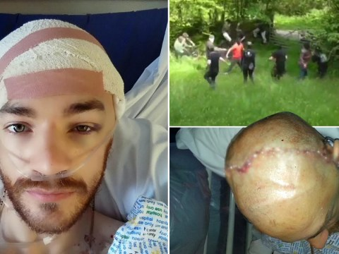 Man whose skull was fractured in fox hunt brawl speaks out after police dropped case