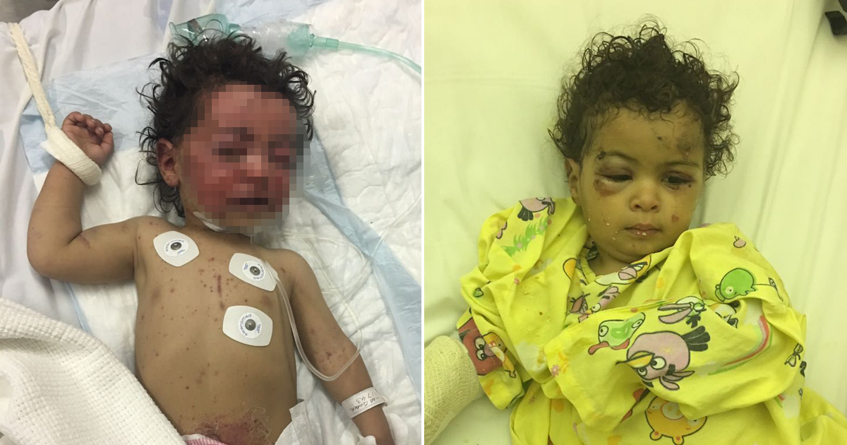Heartbreaking photograph shows baby tied to bed after airstrike killed her mother