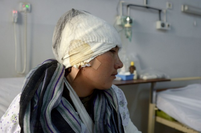 An Afghan victim of domestic violence, Zarina, 23, and whose husband cut off both her ears in an attack, sits on a bed as she receives treatment at a hospital Mazar-i- Sharif on February 2, 2017. A man in northern Afghanistan has cut off his young wife's ears, the head of a hospital caring for her said February 1, confirming the brutal act of domestic violence. The 23-year-old victim, Zarina, was attacked on the evening of January 31 in Balkh province, according to Noor Mohammad Faiz, the director of a hospital in Mazar-e-Sharif. / AFP PHOTO / FARSHAD USYANFARSHAD USYAN/AFP/Getty Images