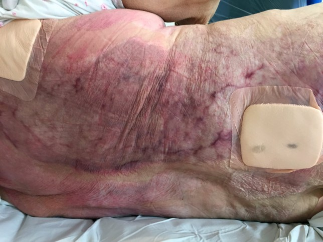 *** WARNING GRAPHIC CONTENT *** PIC FROM Caters News - (PICTURED: Kathleen Waterss back after the radiator burns) - This is the horrific picture of a grandmothers back after being severely burnt by a radiator. Kathleen Waters, 80, from Morden, South London, who suffered from dementia, was found slumped against a radiator in her bedroom leaving her with second degree burns across her entire back. Her skin was so badly damaged, she needed a four hour operation and spent two months in hospital recovering. The Manor House care home in Morden, knew she was high risk of falls yet there was no one monitoring her nor was the radiator covered. SEE CATERS COPY.