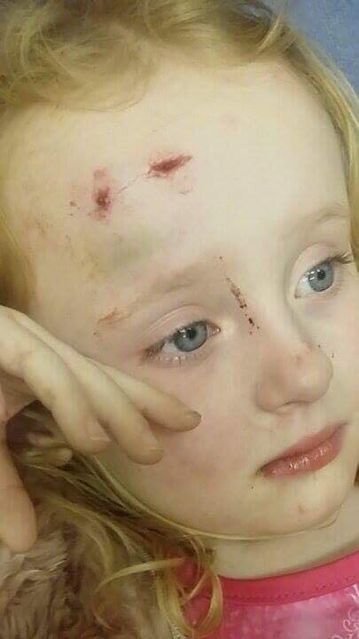 Hollie Newman, 4, was injured by Storm Doris when a gust of wind knocked her off her feet on Newport Road, Cardiff