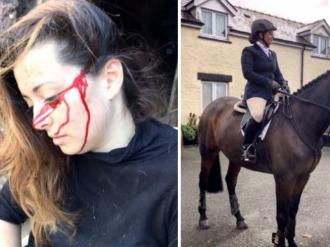 Woman accidentally stabs herself in the head with scissors after pony runs into her