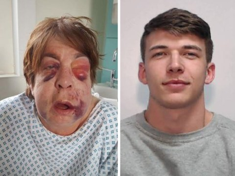 Thugs who broke every bone in defenceless grandmother's face are jailed