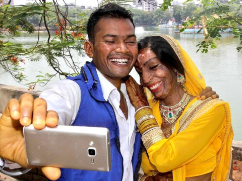 Woman left disfigured by acid attack gets married and says 'miracles do happen'
